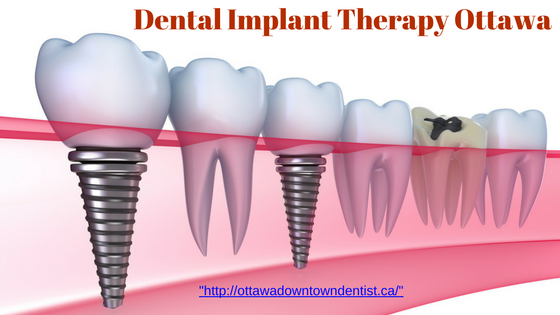 dental-implant-therapy-ottawa